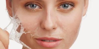 Eliminar Manchas Faciales Con Peeling : My Kitsch World