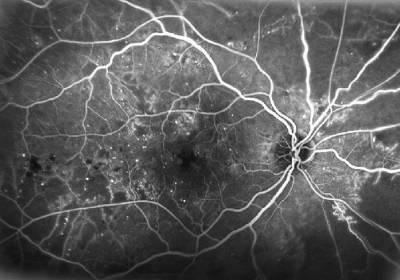 Qué es la retinopatía diabética y por qué elegir Novovisión
