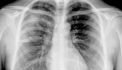 Cáncer broncogenico, ¿qué es?