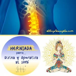 Herniada, pero Divina y Operativa al 100%