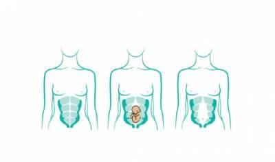 Diástasis abdominal, una causa de que no desaparezca la tripa del embarazo