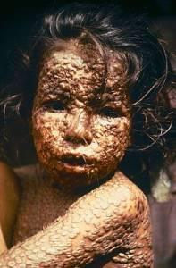 ¿Existe un peligro para la humanidad?: En EE. UU prueban con un virus genéticamente modificado de viruela.