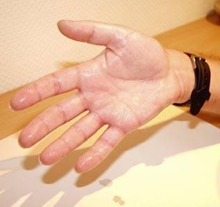 Hiperhidrosis: Sudor excesivo