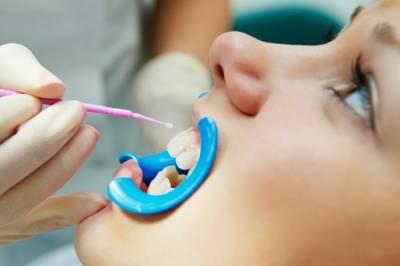 ¿Para que sirve un sellador dental?