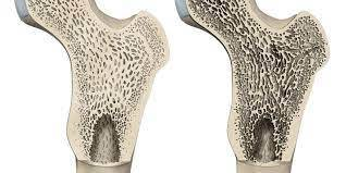 Nuevo Objetivo para Tratar la Osteoporosis y la Artritis Reumatoide